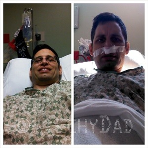 before and after surgery for post